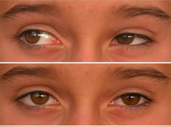 What are the Best Eye Exercises to Improve Your Vision