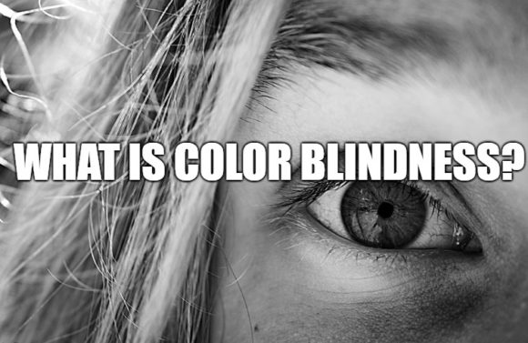 How Do You Get Color Blindness